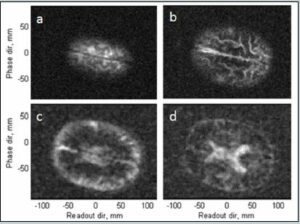 Figure 4. a–d) ULF MRI of the human brain, 15 mm thick transverse slices progressing in depth. The lower two slices are de-noised with a Golay filter. Data are from Reference 24. (Released
