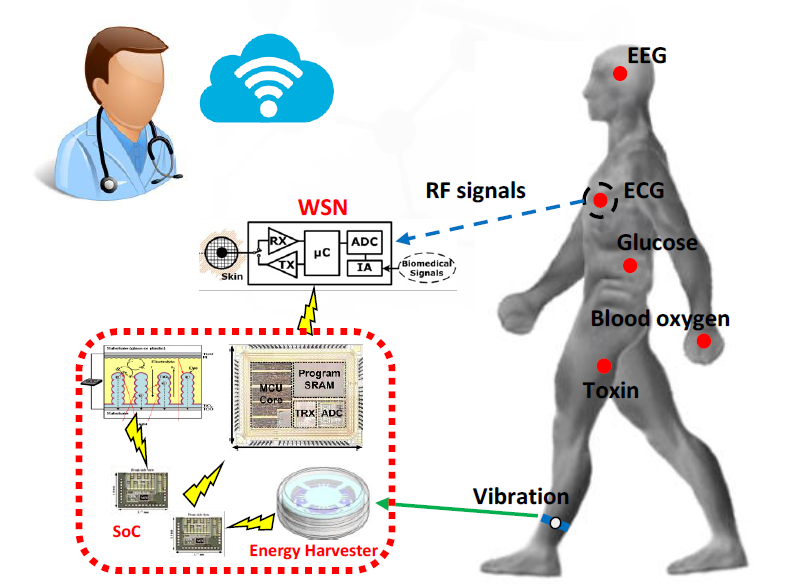 Figure 1. The concept of a wireless body sensor network.
