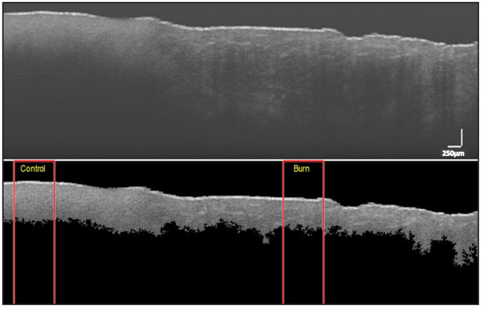 Figure 3. OCT image of superficial-partial thickness burn. (top) Unprocessed image. (bottom) Segmented image. Rectangular red boxes indicate 300-column region used for extracting features (Depth: Control = 0.66mm, Burn = 0.58mm; Entropy: Control = 2.56, Burn = 2.27) (Scale: 250µm).