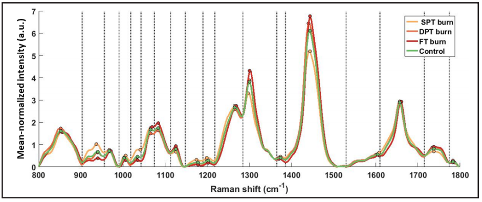 Figure 4. Mean normalized Raman spectra averaged across all spots for each burn type. 18 segments (bands) separated by dotted delimiters, drawn at local minima, were obtained using a peak detection algorithm. All relative features (Method I) (N=54) were computed across each of the 18 segments, and peak intensities in each segment are marked with colored circles.