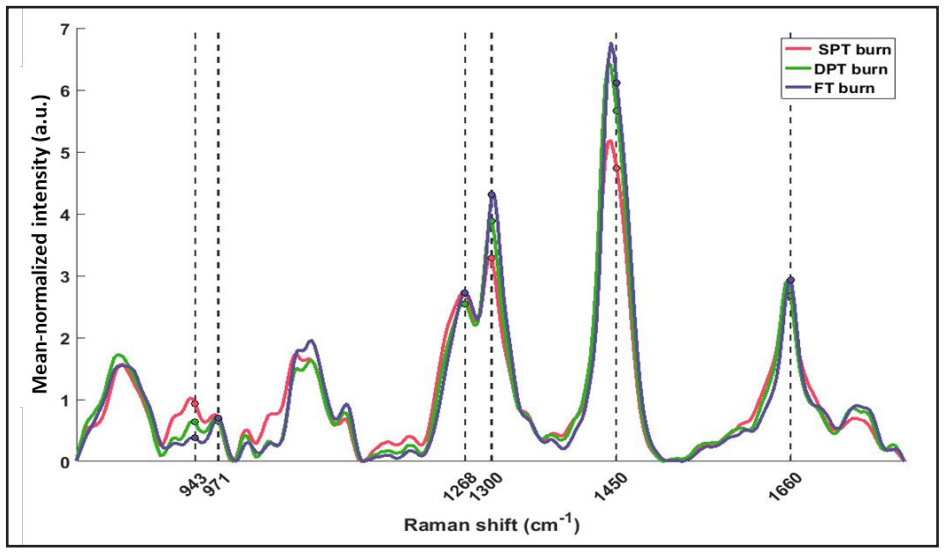 Figure 5. Mean normalized spectra averaged across all spots of different burn severity. Three of the absolute features (Method II) were computed at wavenumbers clinically relevant to skin tissue (marked with dashed lines). Peak intensity ratios were calculated as: 943/971cm-1 (N-Cα-C/C-C proline ring), 1,300/1,268cm-1 (C-H bending/Amide III), and 1,450/1,660cm-1 (CH2 bending/ Amide I – C=O stretch).