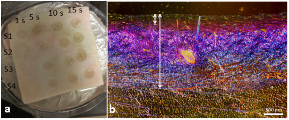 Figure 1. (a) Sample of cadaver porcine skin showing burn wounds created at 1s, 5s, 10s, and 15s durations of time (burns created at 1s were not used in the study). (b) Histological image of 10s burn with coagulated (short line) to total (long line) collagen ratio of less than 0.35—labeled as SPT wound.