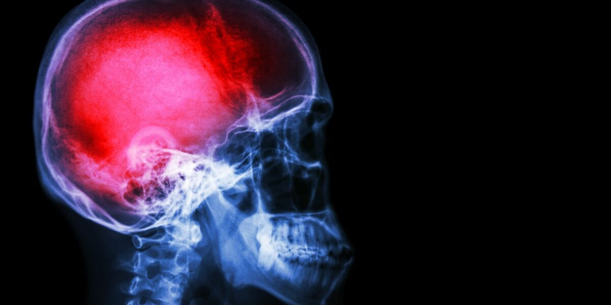https://www.army.mil/article/232238/army_research_may_improve_stroke_tbi_treatment